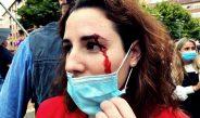 Cargas policiales y agresiones en un mitin de Abascal (Vox) en Sestao